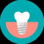 אייקון של השתלות שיניים בראשון לציון