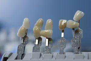 ציפוי שיניים לטיפול שורש