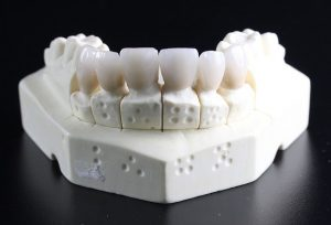 מבנה שיניים בוגרות