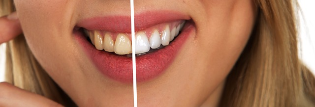 כתמים בשיניים
