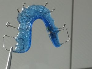 גשר פנימי לשיניים כחול