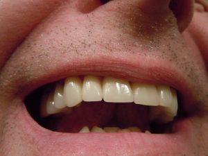 איש שהודבק לו גשר פנימי לשיניים