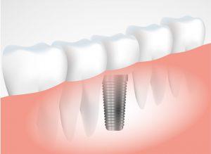 השתלת שיניים בראשון לציון בכל הפה