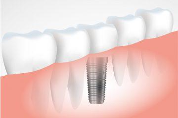 כמה תעלה לכם השתלת שיניים?