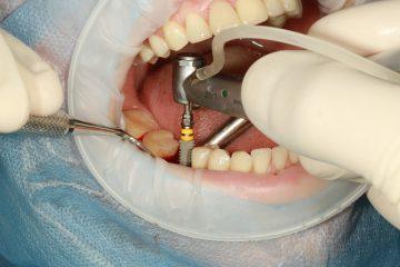 השתלת שיניים בגיל השלישי
