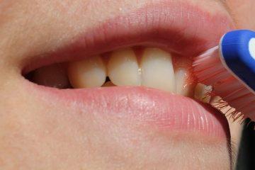 דימום מהחניכיים בזמן צחצוח שיניים