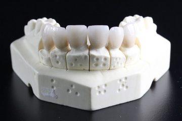 מבנה שיניים